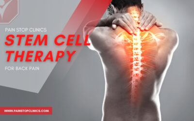 Stem Cell Therapy for Back Pain